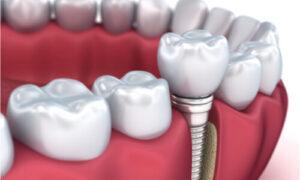 illustration of implants