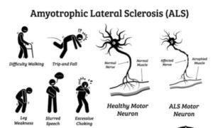 typical symptoms of ALS