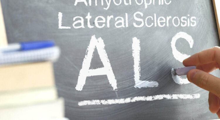 Do ALS symptoms come and go? facts to know about ALS
