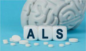 ALS is a progressive disease.